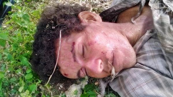 Un Hombre Muere Atropellado En Consuelo