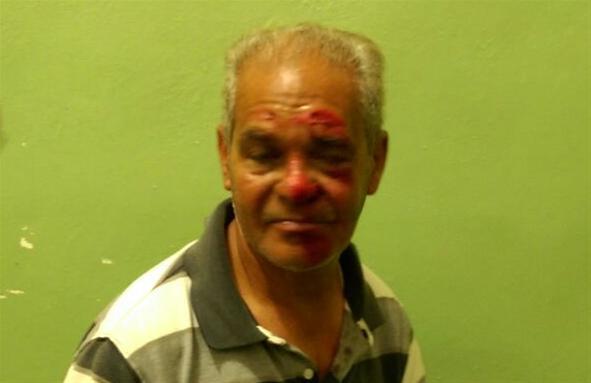 Un Hombre Resulta Herido En Accidente De Motorores