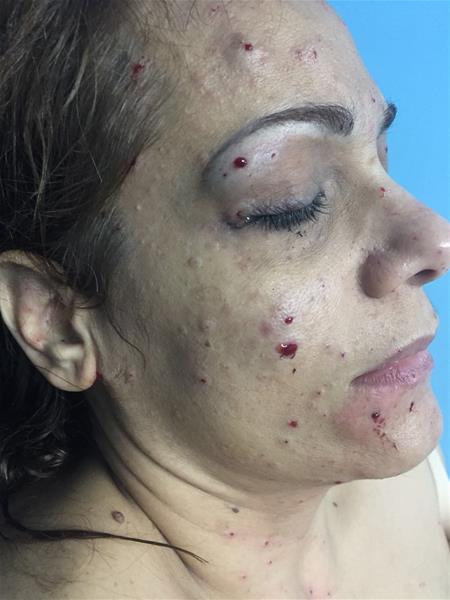Identifican Estudiantes Y Maestra Heridos Durante Explosión En La Uce