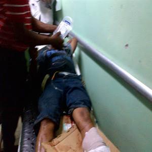Dos Personas Resultan Heridas Al Deslizarse En Motocicleta